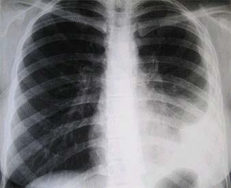 Radio Poumon